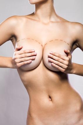 Reducción y/o elevación de mamas