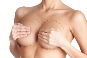 Tits correction. Plastic surgery, isolated, white background