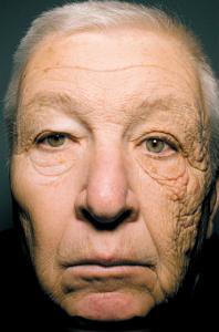Fotoenvejecimiento piel