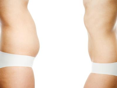 Cirugía esética corporal liposucción abdominoplastia - Cirugía del contorno corporal: Consejos previos a la intervención.