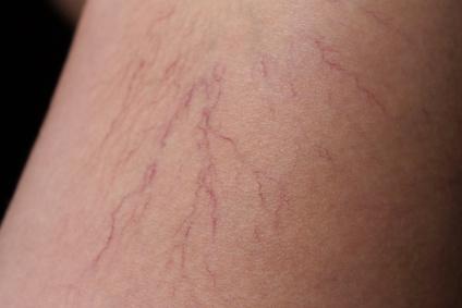 arañas vasculares desaparecen solas