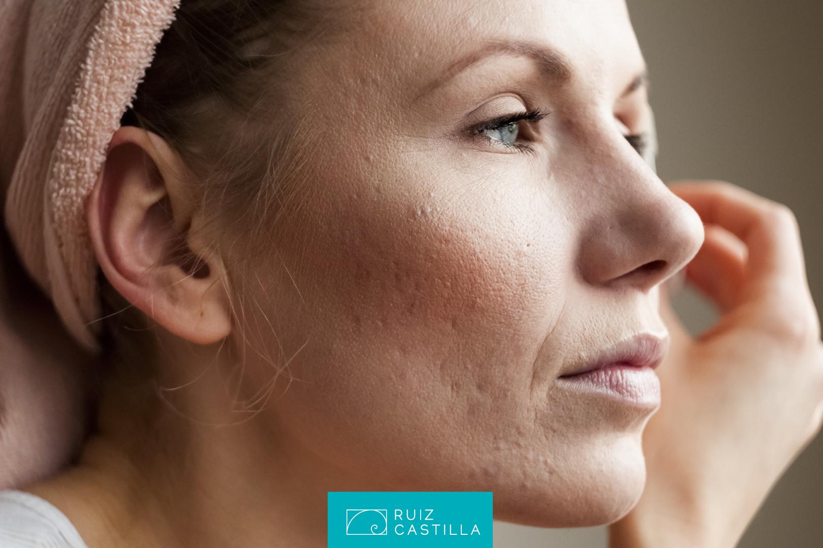 acido glicolico para cicatrices acne