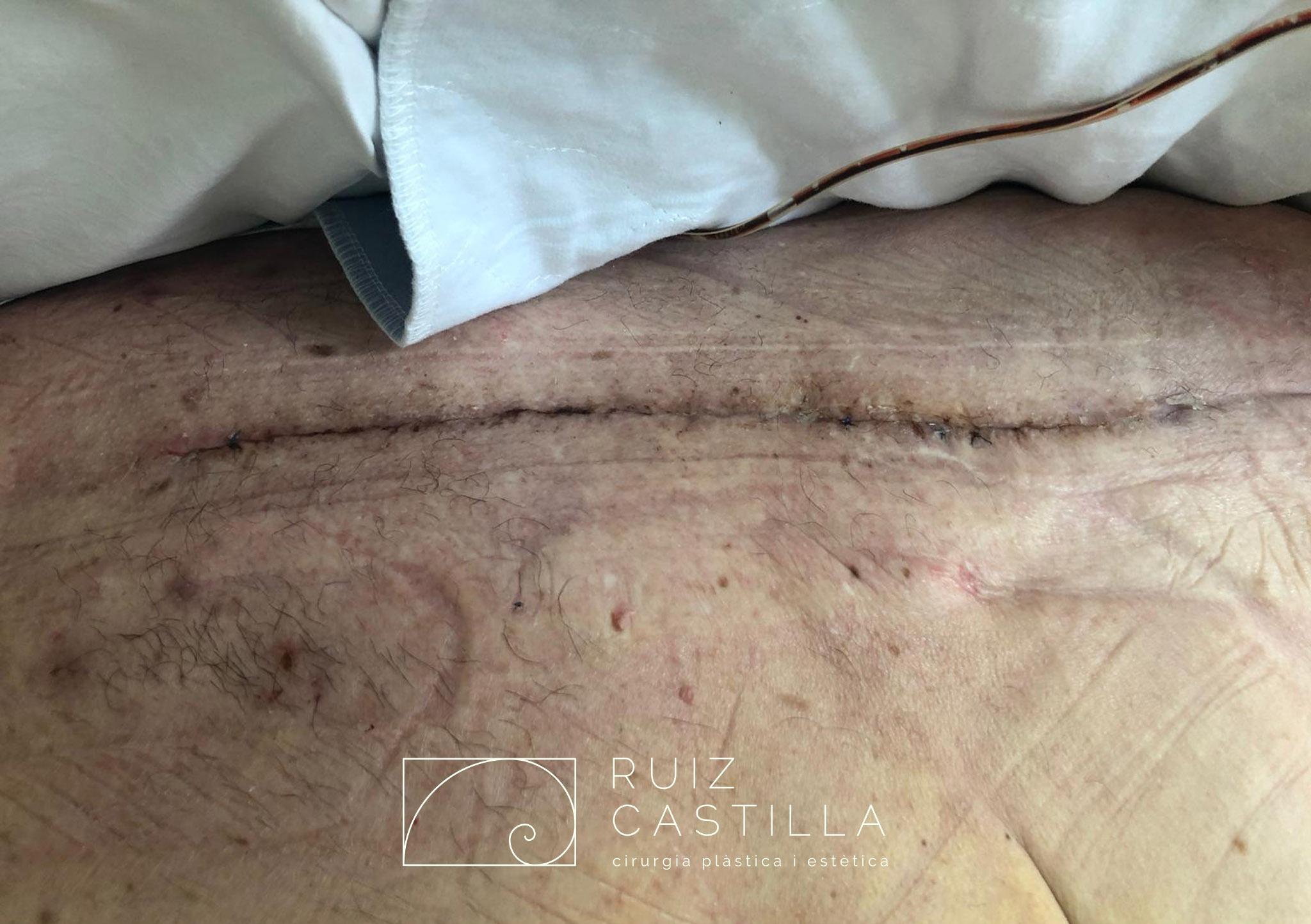 Herida quirúrgica completamente cicatrizada