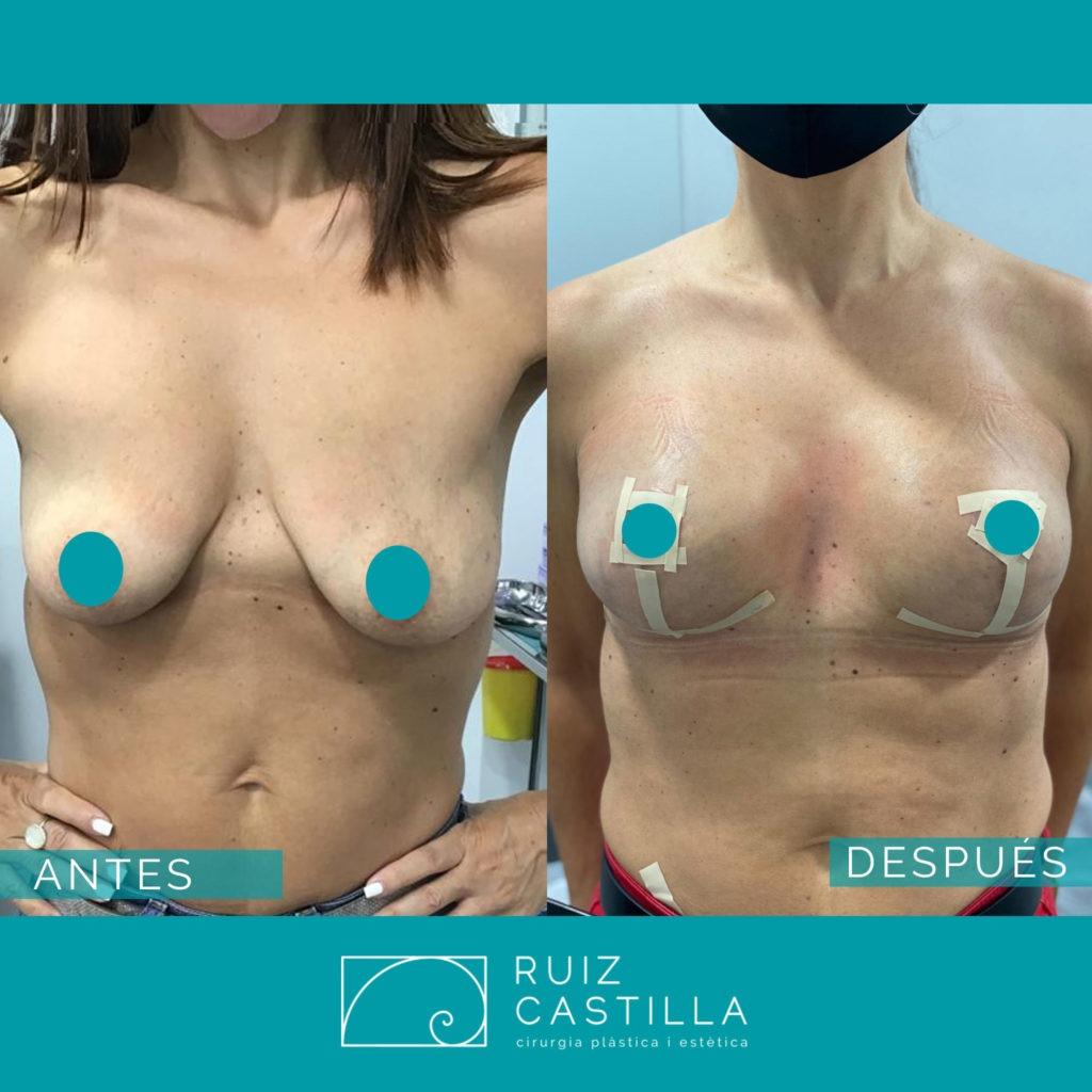antes y después reconstrucción mama