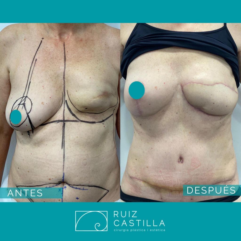 antes y después reconstrucción mama 2