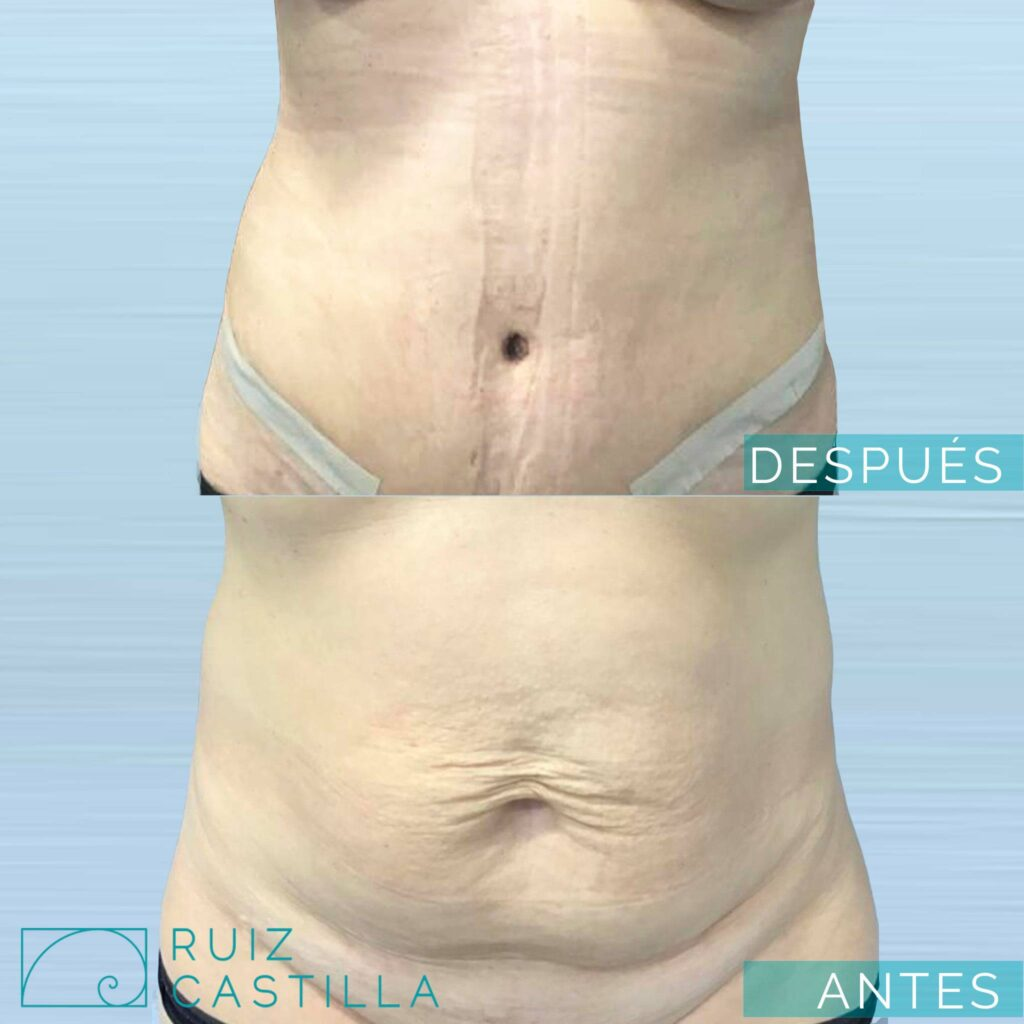 abdominoplastia clasica