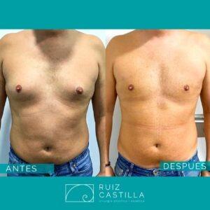 Ginecomastia 300x300 - Ginecomastia antes y después
