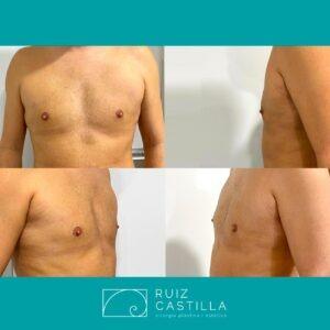 Ginecomastia2 300x300 - Ginecomastia antes y después